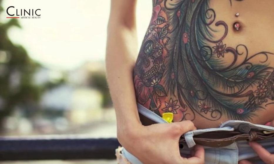 Rimozione dei tatuaggi. L'innovazione delle tecniche laser